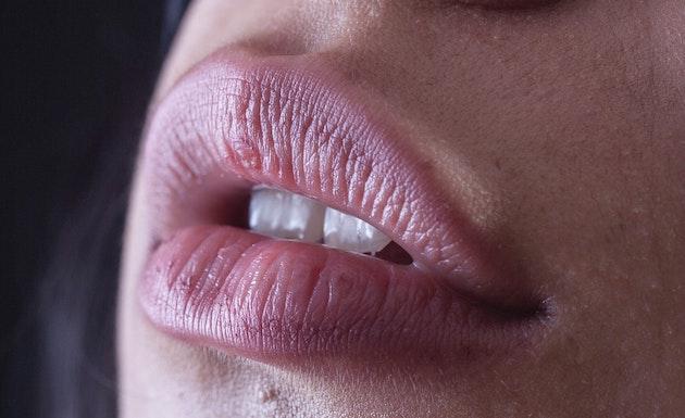 lèvres médecine esthétique bordeaux aparté docteur slodzian