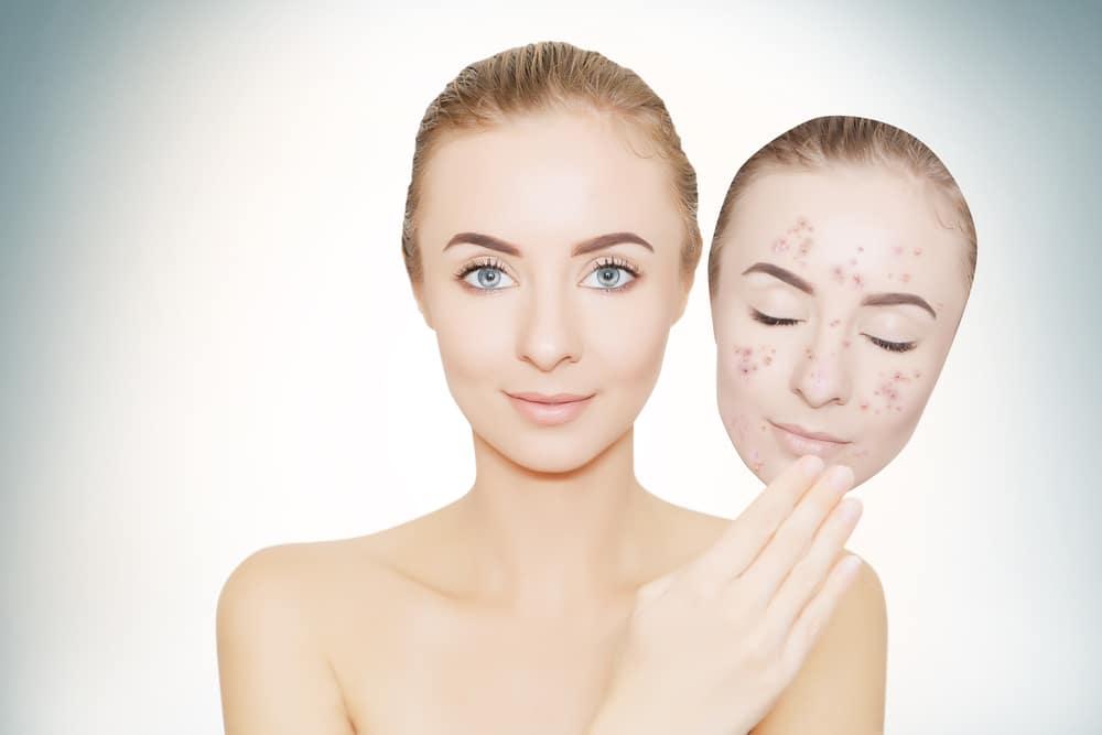 acné médecine esthétique bordeaux docteur slodzian